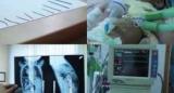 У Ташкенті з тіла 11-місячну дитину витягли 16 сталевих голок