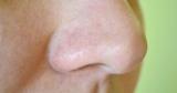 Як позбутися від комедонов на обличчі: методи і засоби, поради і рекомендації, відгуки